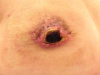 乳輪乳頭手術画像